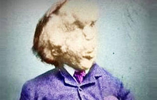 Facts about the Elephant Man