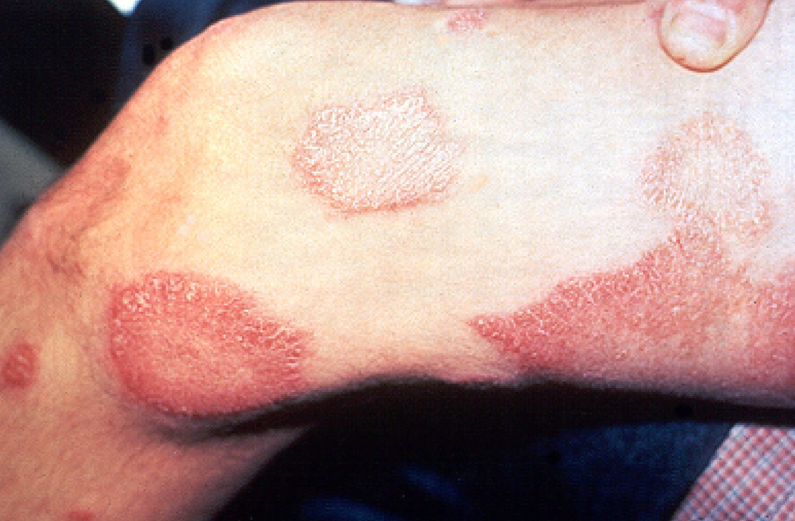 facts about leprosy